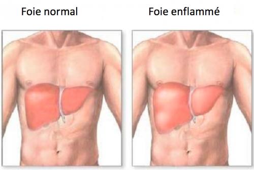 foie-normal-foie-enflammé-500x335